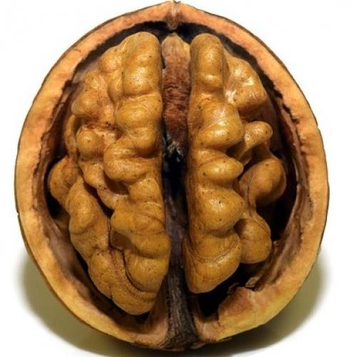 """Saruna """"Kas ir smadzeņu fitness un kā veicināt neiroplasticitāti?"""""""